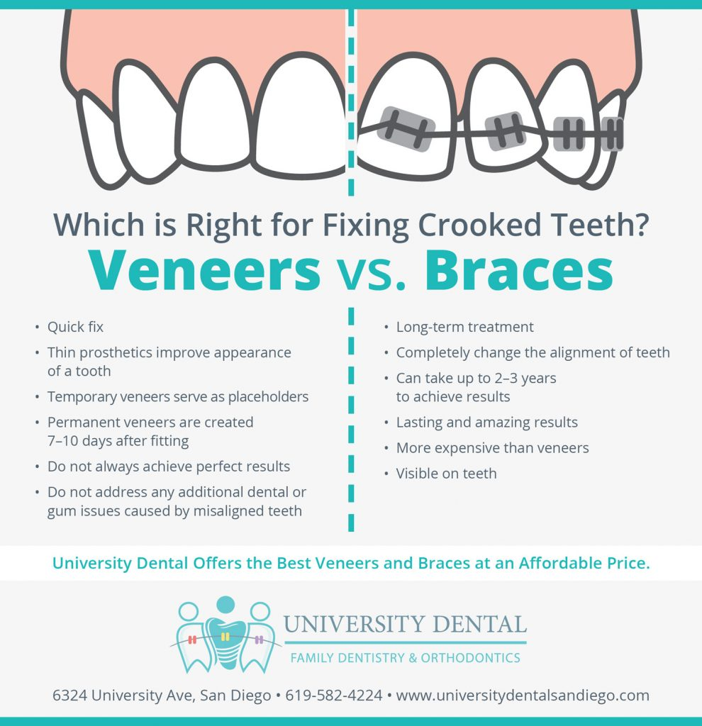 Veneers vs Braces: Which Is Right for Fixing Crooked Teeth
