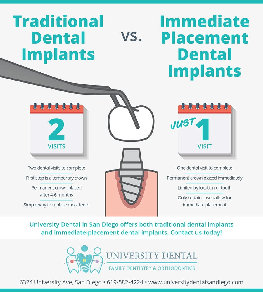 Traditional Dental Implants vs. Immediate-Placement