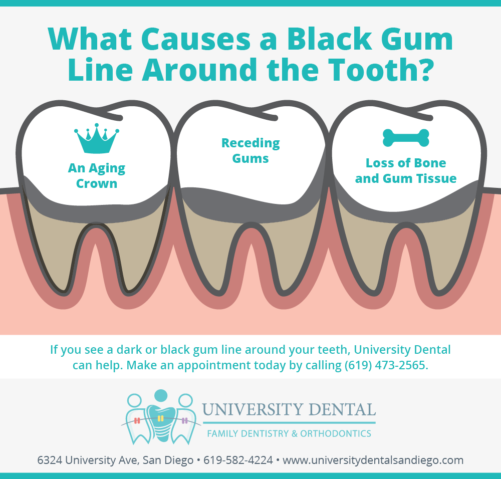 What Causes A Black Gum Line Around The Tooth