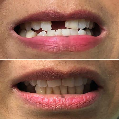 Affordable Dental Implants San Diego CA | Same Day Teeth