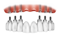 Implant-Supported Dentures